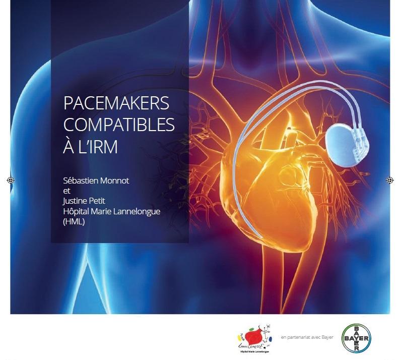 Pacemakers compatibles à l'IRM